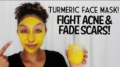 DIY Turmeric Face Mask! Fight Acne and Fade Scars!| BiancaReneeToday