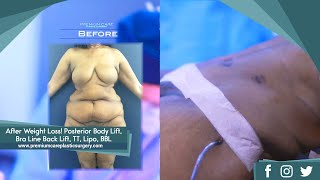 Combination plastic surgery after weight loss can provide a dramati...