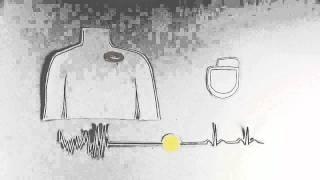 Popular Implantable cardioverter-defibrillator & Medtronic videos