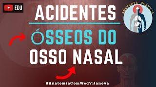 Osso Nasal: Acidentes Anatômicos.