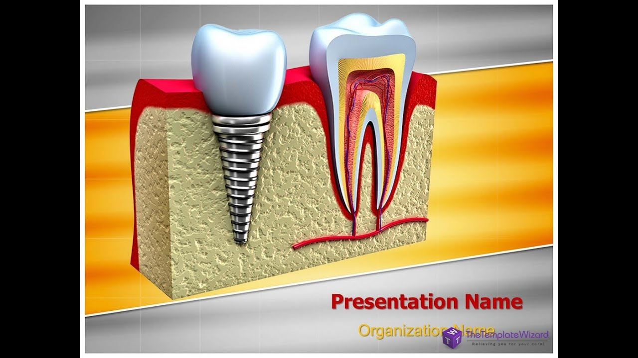 dental implant teeth powerpoint template