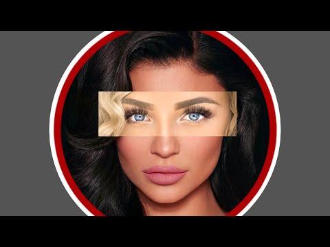 Warum Influencer alle gleich aussehen & Schönheits-OPs nicht feministisch sind