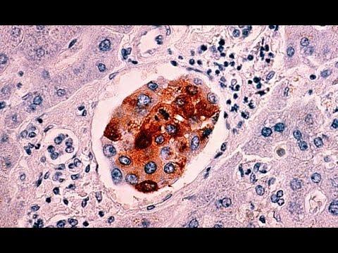 Alternatywne leczenie raka: Terapia Burzyńskiego