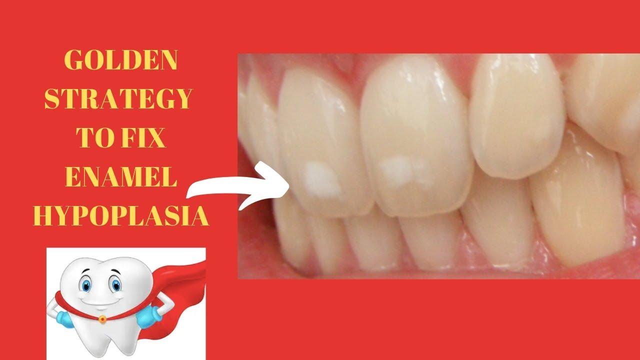 Yellow Teeth Stains My Los Feliz Beauty Blog
