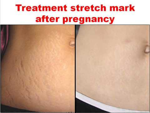 Best stretch mark cream before and after pregnancy - YouTube