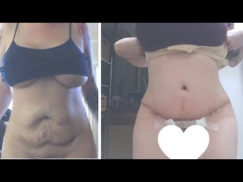 My tummy tuck experience | Q&A