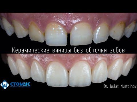 Частная стоматологическая клиника в Москве Ланцет