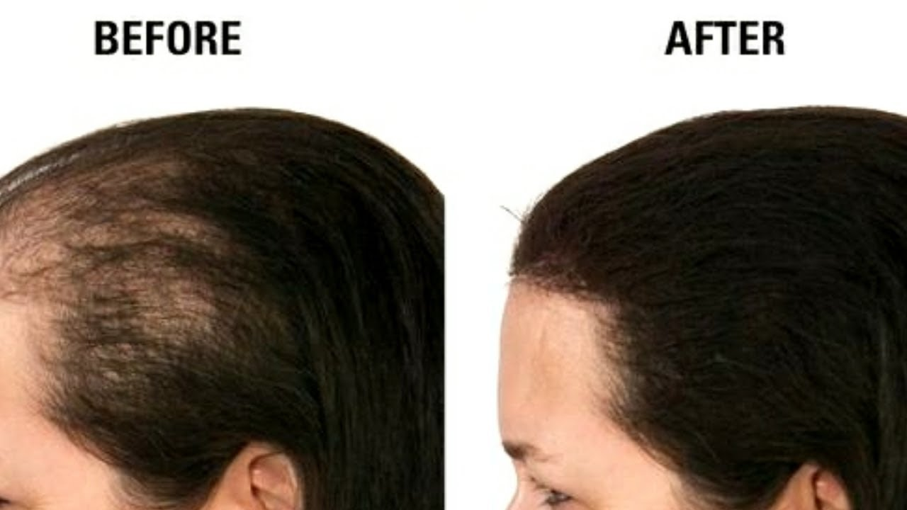 Kalonji Magical Hair Oil For Hair Growth Stop Hairfall