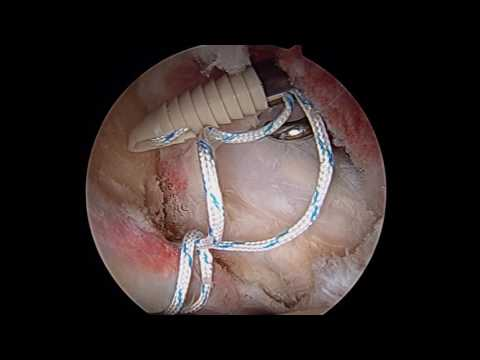 My hip repair labral tear