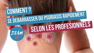 Psoriasis:COMMENT SE DEBARRASSER DU PSORIASIS TYPES,CAUSES ET PREVENTIONS