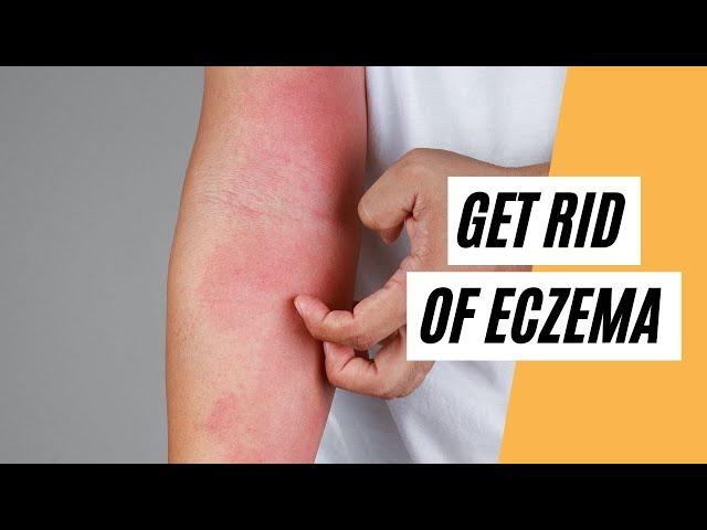 How To Get Rid Of Eczema? (Drink KANGEN Water)