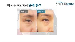 [아이미 김성민성형외과] 스마트눈지방이식 - 증례분석