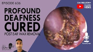 636 - Profound Deafness Cured Post Ear Wax Removal