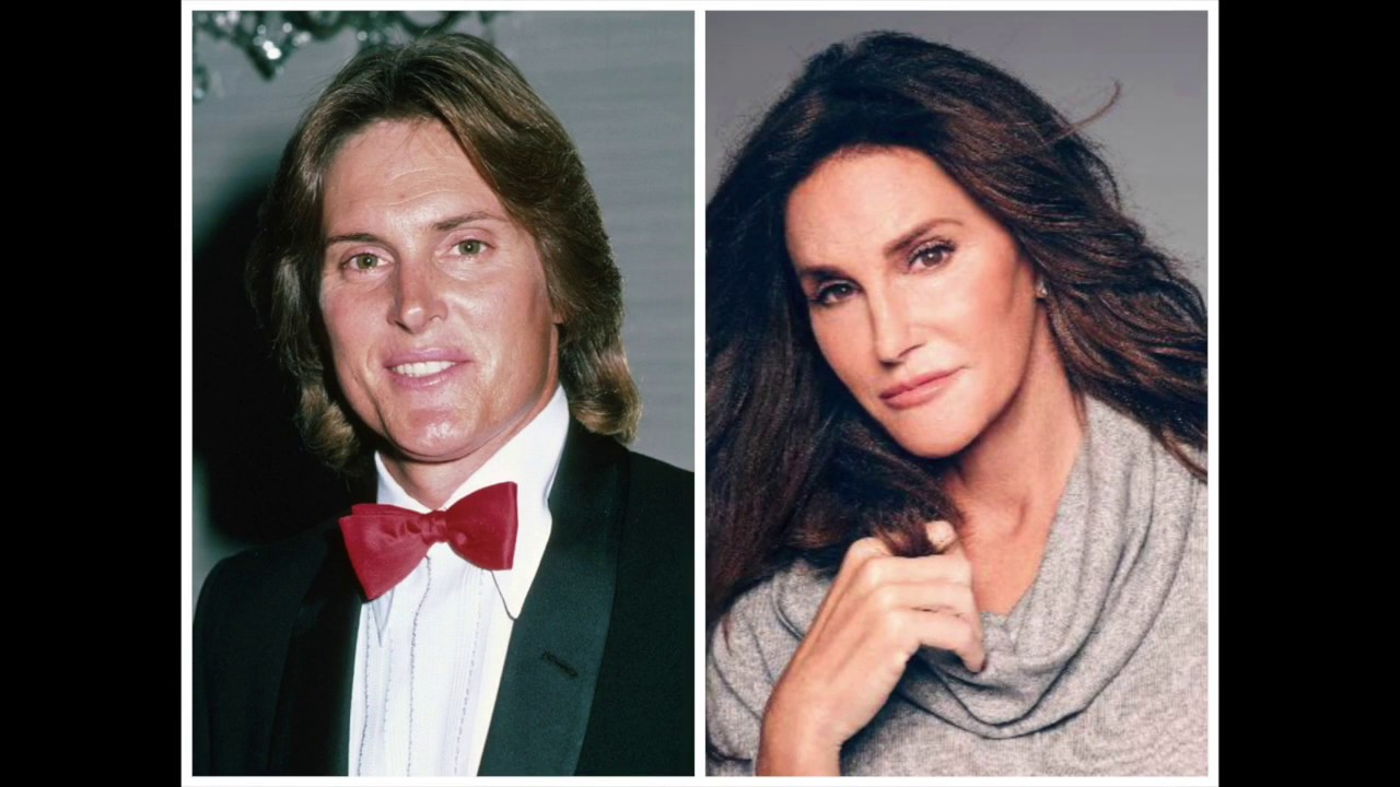 And jenner pictures after bruce before
