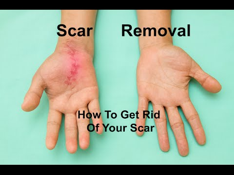 Scar Removal: How to get rid of your scar