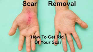 Repeat youtube video Scar Removal: How to get rid of your scar
