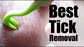The Best Way to Remove an Embedded Tick