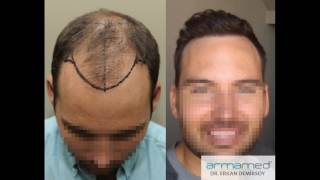 Dr.Erkan Demirsoy 3622 Grafts Fue Before After Photos
