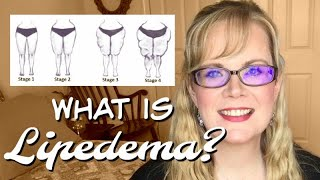 LIPEDEMA || What is Lipedema? || Adipose (fat tissue) Disorder || Coffee Chat