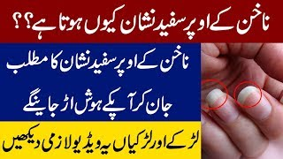 White Spot on Nail Meaning and the Reason Behind it | Why there are White Spot on Nails