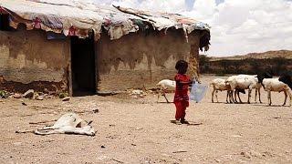 Глаза голода в Сомали