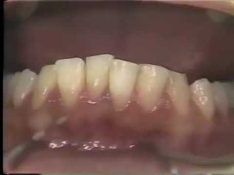 Introduction to Oral Health: Clinic Session I