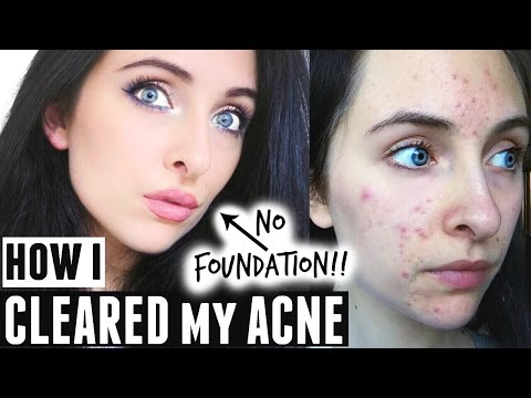 HOW I CLEARED MY SKIN & MARKS | MY ACNE STORY + PRODUCTS
