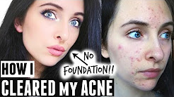 hqdefault - Does La Roche Posay Work On Acne