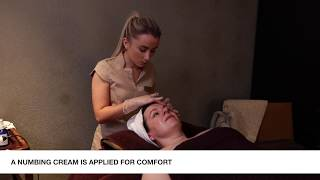 Rejuvapen Microneedling at The Marker Spa & Wellness - a little closer look