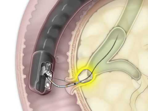 Ercp For Removal Of A Stone In The Bile Duct Youtube