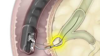ERCP for Removal of a Stone in the Bile Duct