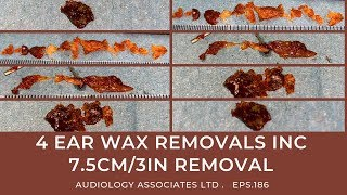 4 EAR WAX REMOVALS INC 7.5CM/3IN REMOVAL - EP186