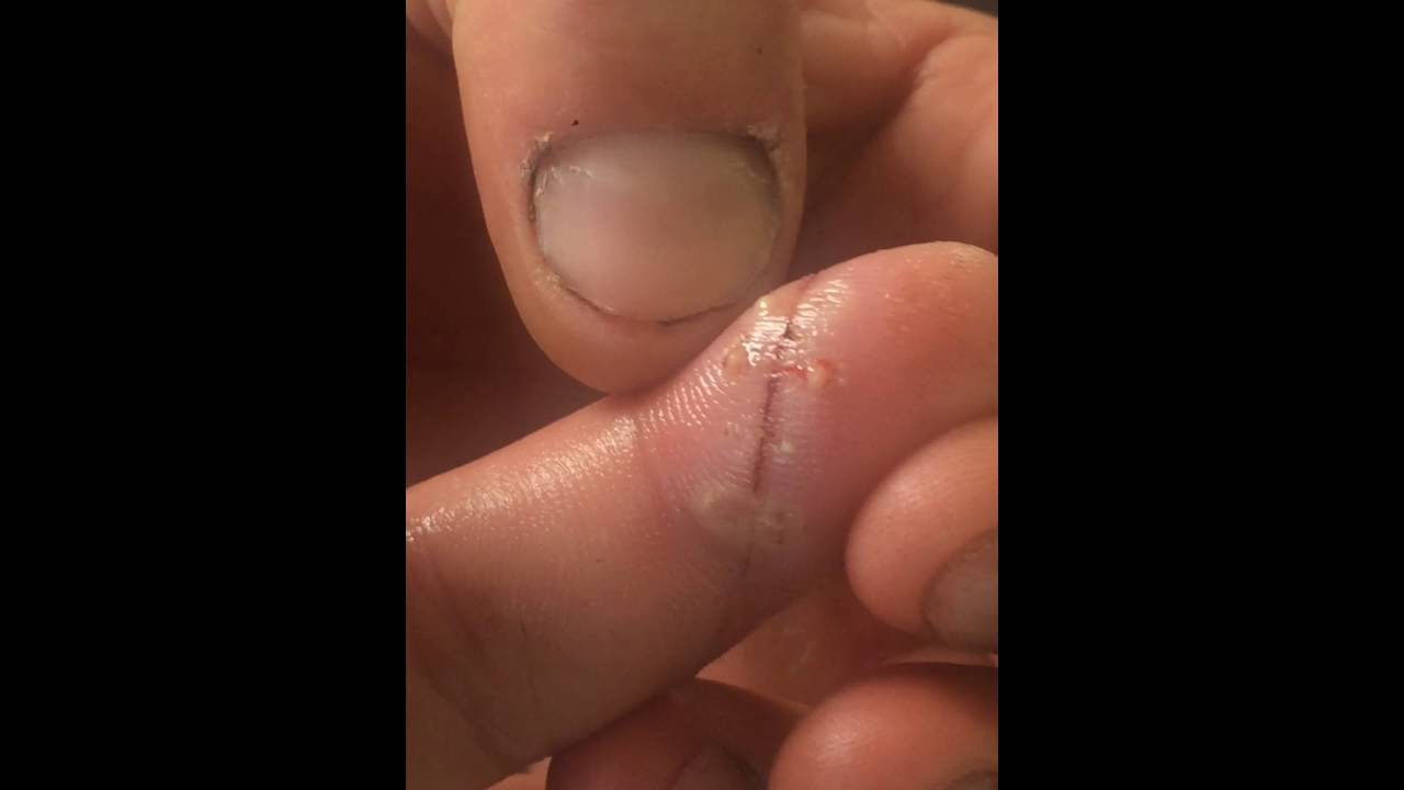 Infected stitches in finger PUS - YouTube