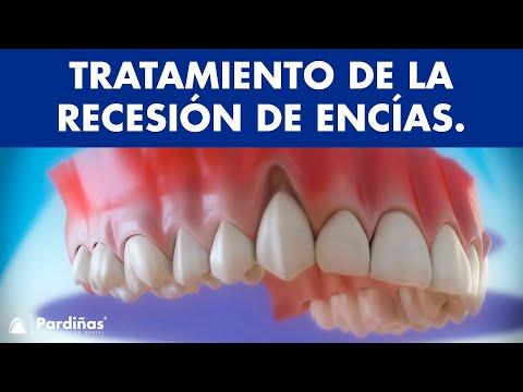 Encías retraídas - Tratamiento de la recesión de encías ©