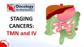 Staging cancers: TNM and I-IV systems