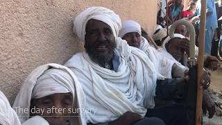 Ethiopia Project Cataract Campaign