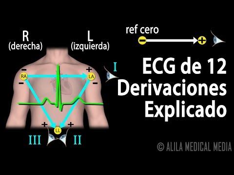 ECG de 12 Derivaciones Explicado, Animación.  Alila Medical Media Español.