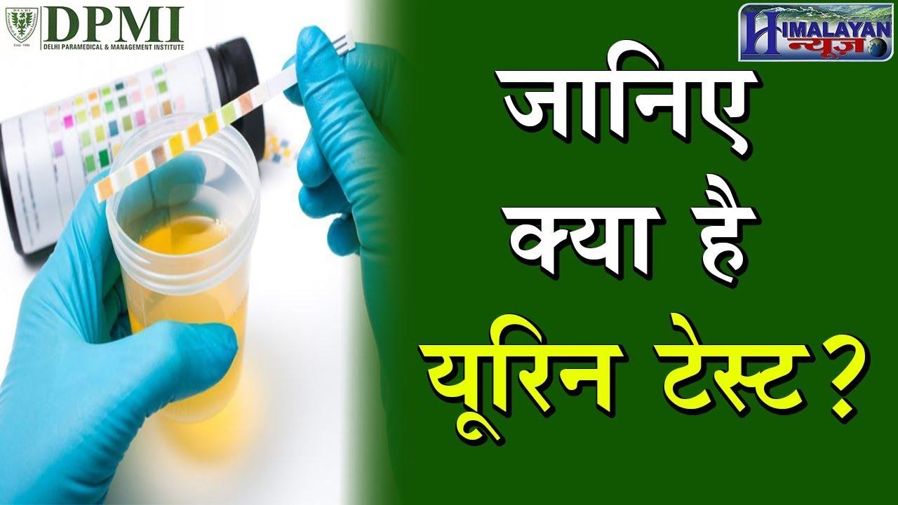 यूरिन टेस्ट करने का सबसे आसान तरीका   Urine Test   DPMI