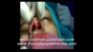 Rhinoplasty Delhi Closed Nose Job India
