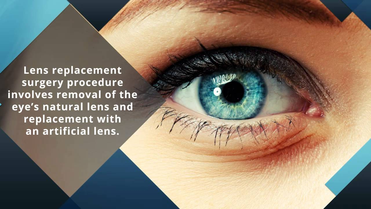 Lens Replacement Surgery with Australian Institute of Eye ...
