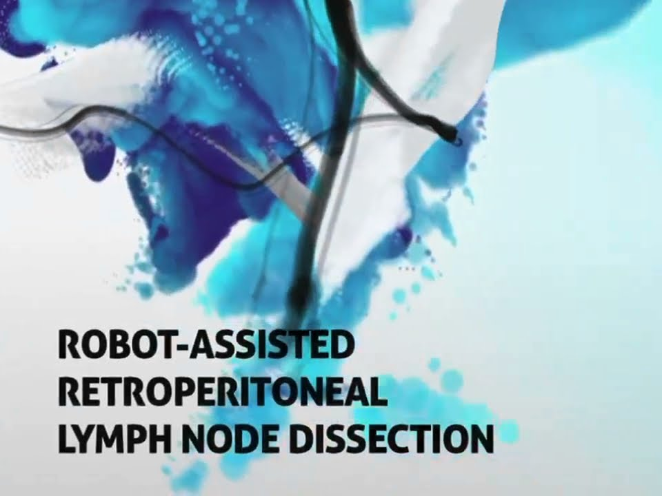 Robot Assisted Retroperitoneal Lymph Node Dissection - YouTube