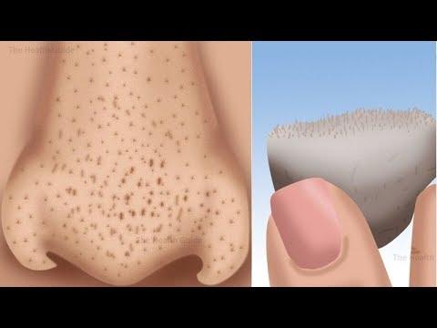 """5 طرق لأزالة النقاط السوداء حول أنفك خلال """" ثلاث دقائق """""""