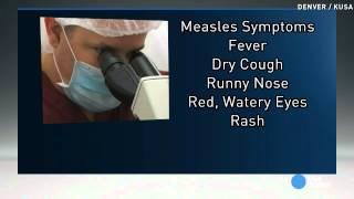 Measles outbreak spreads beyond Disneyland guests