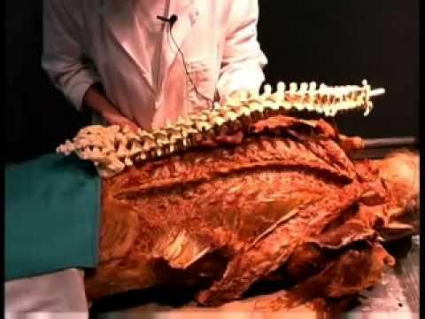 Anatomia Humana - Músculos posteriores vértebras, Coluna Espinhal e ...