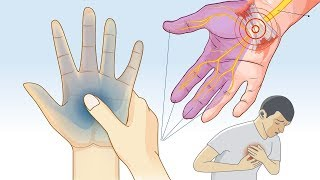 What Causes Tingling and Numbness in Hands and Feet?