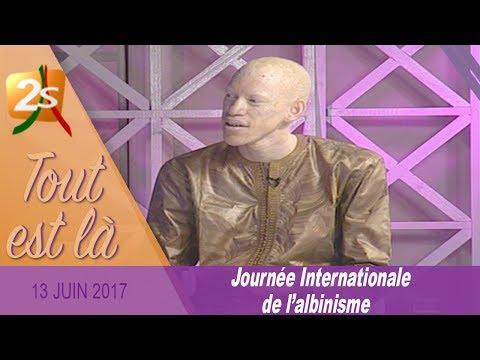 JOURNÉE DE L'ALBINISME: LES PROBLÈMES RENCONTRÉS PAR LES ALBINOS AU SÉNÉGAL - TOUT EST LÀ DU 13 JUIN