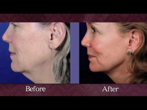 Columbia Laser Resurfacing, Skin, Chemical Peel, Evans, Augusta, Aiken, Atlanta, Buckhead