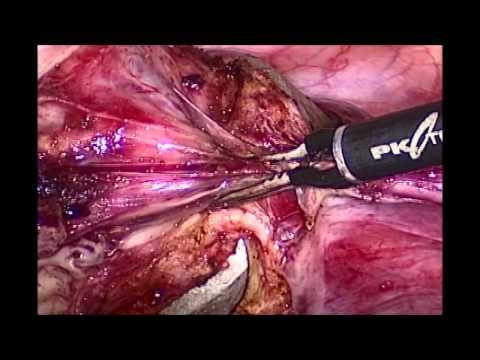 Laparoskopische Hysterektomie - Laparoscopic hysterectomy