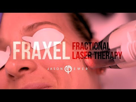 Skin Resurfacing Treatment | Fraxel Fractional Laser | Wrinkle + Acne Scar Treatment | Jason Emer MD