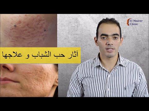 أنواع آثار حب الشباب و طريقة علاجها – د. محمد الناظر